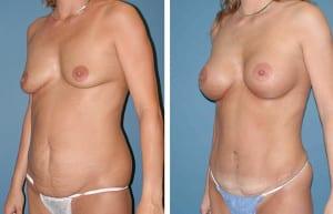 Foto Prima e Dopo Addominoplastica (1)