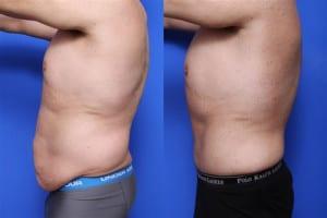 Foto Prima e Dopo Addominoplastica (4)