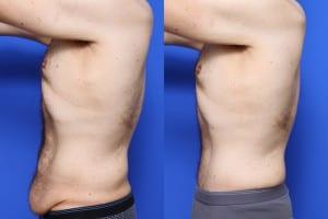Foto Prima e Dopo Addominoplastica (5)