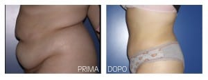 addominoplastica (2)