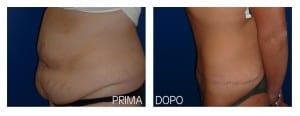 addominoplastica (4)